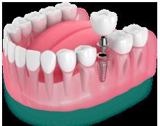 Имплант зуба в Краснодаре