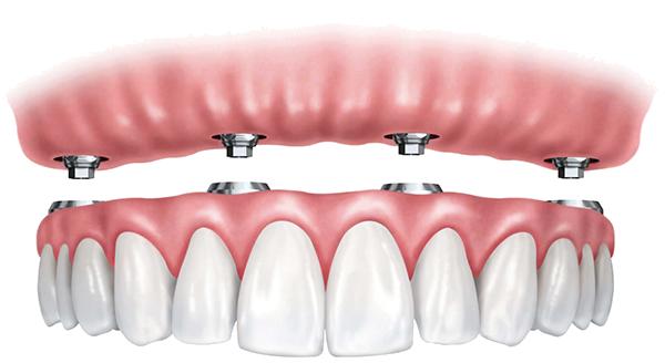 Имплантация All on 4 - все зубы на четырех имплантах