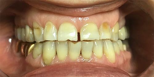 Установка виниров на зубы - до