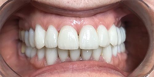 Установка виниров на зубы - после