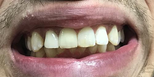 Реставрация двух зубов на верхней челюсти - после