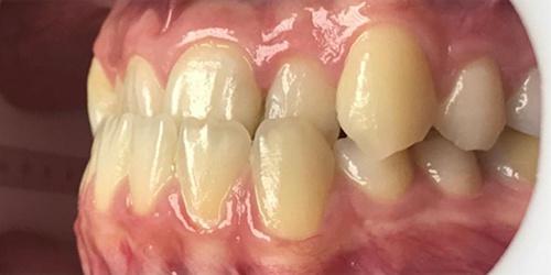 Ортодонтическое лечение на брикет-системе - до