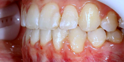 Ортодонтическое лечение на брикет-системе - после