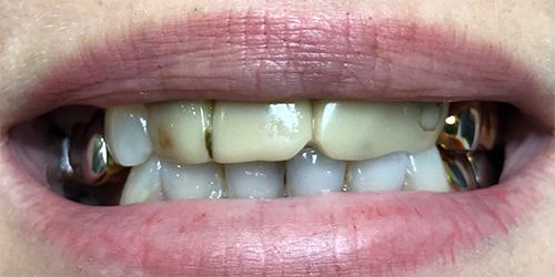 Установка виниров на верхний ряд передних зубов - до