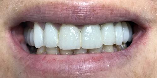 Установка виниров на верхний ряд передних зубов - после