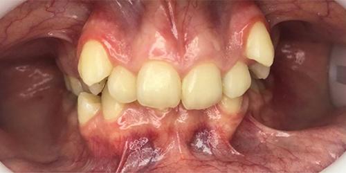 Ортодонтическое лечение на брекет-системе - до